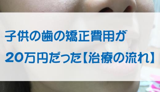 子供の歯の矯正費用が20万円だった【治療の流れ】