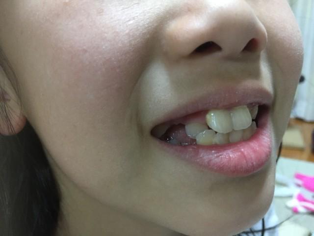 歯並びが悪いまま9歳に