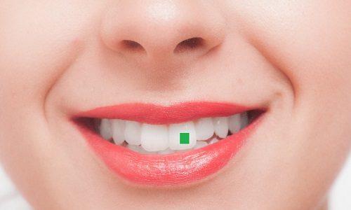 大好きな人の前歯に「青のり」が付いていた時の対処法